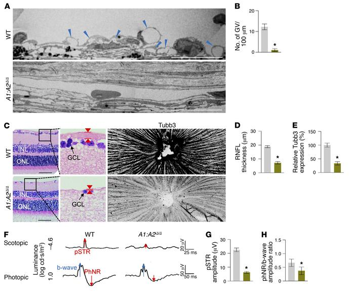 Impaired SC formation in A1:A2iΔ/Δ mice leads to glaucoma. (A and B) EM ...
