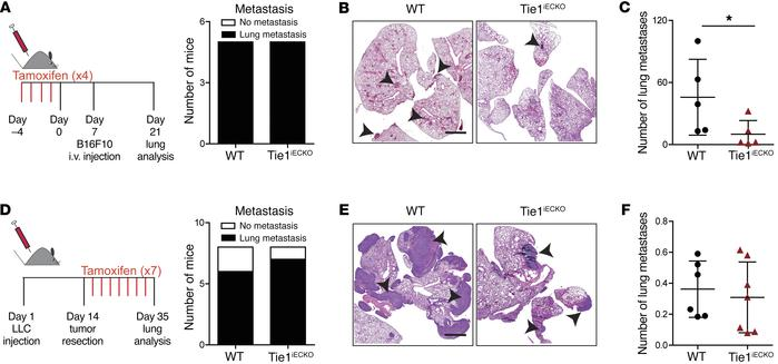 Deletion of endothelial Tie1 reduces tumor cell extravasation and seedin...