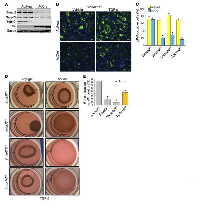 Canonical TGF-β signaling mediates myofibroblast transformation in vitro...