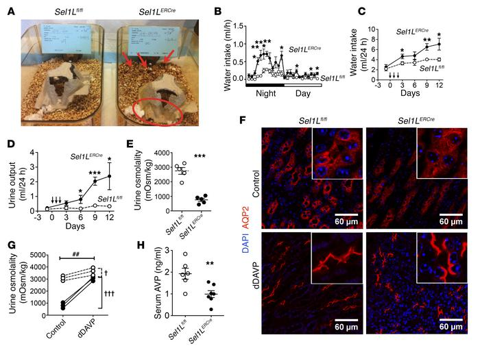 Mice with globally induced Sel1L deficiency develop central diabetes ins...