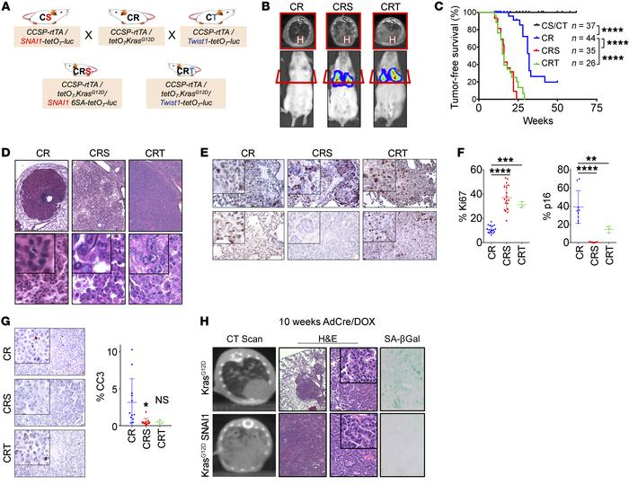 EMT transcription factors accelerated KrasG12D-induced lung tumorigenesi...