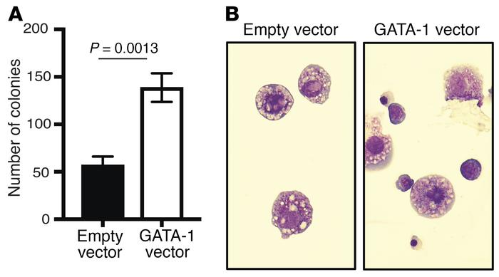 GATA1 overexpression rescues erythroid phenotype in Rnh1-deficient yolk ...