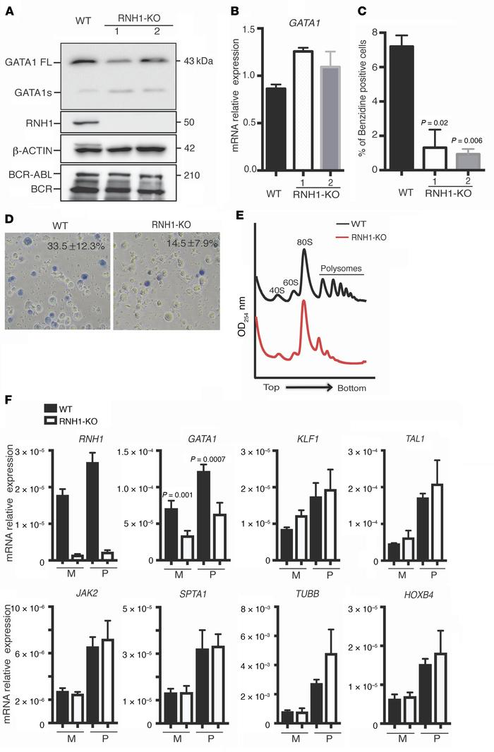 RNH1 deficiency decreases erythroid differentiation and GATA1 protein le...
