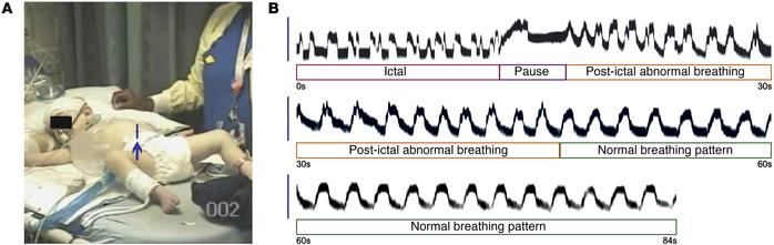 Seizures induce ataxic breathing in a patient with DS. (A and B) Irregul...