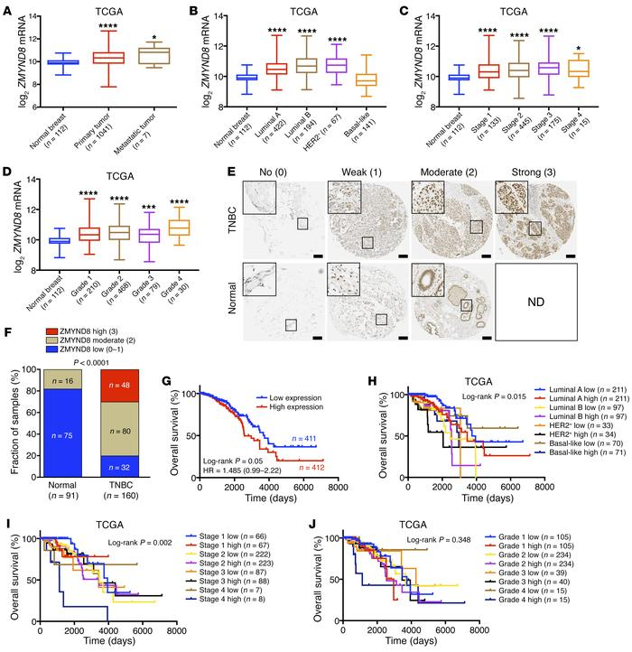 ZMYND8 is highly expressed in breast tumors and predicts poor clinical o...