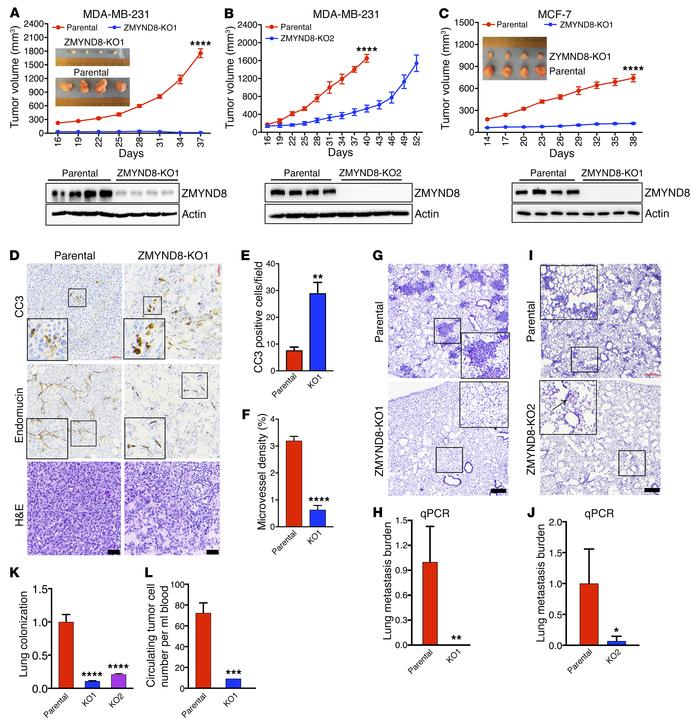Loss of ZMYND8 suppresses breast tumor growth and metastasis to the lung...