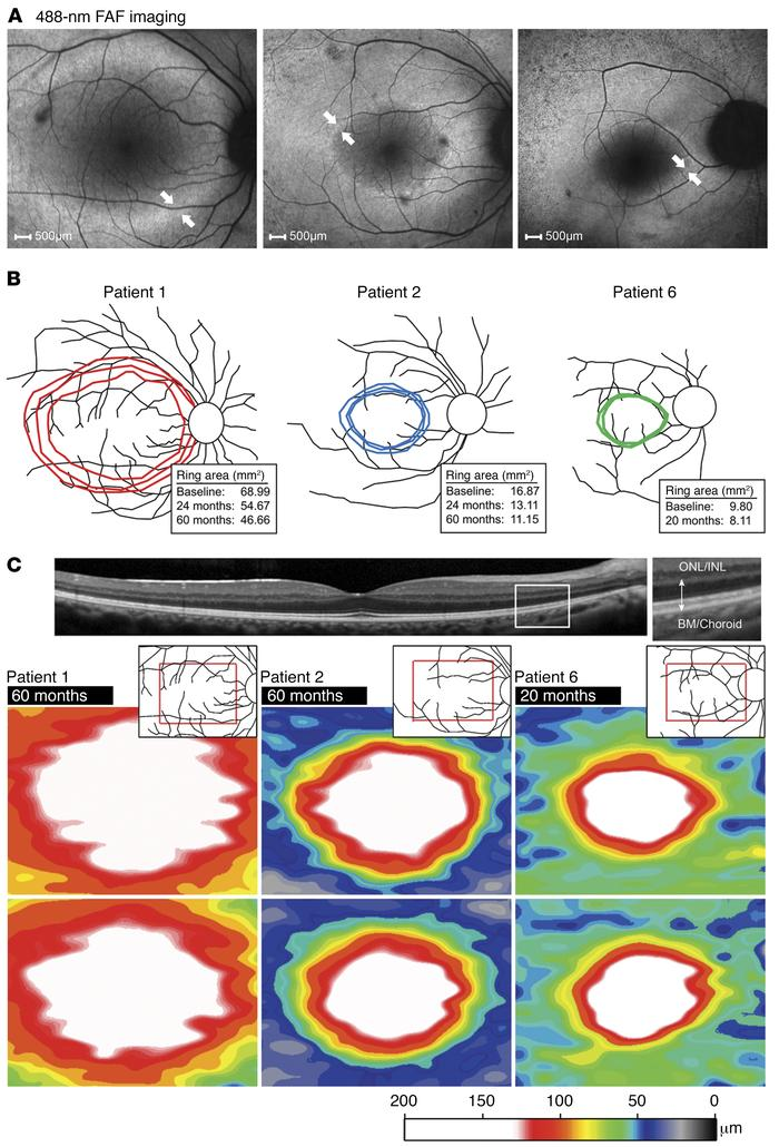 Progressive AF ring constriction and photoreceptor layer thinning in aff...