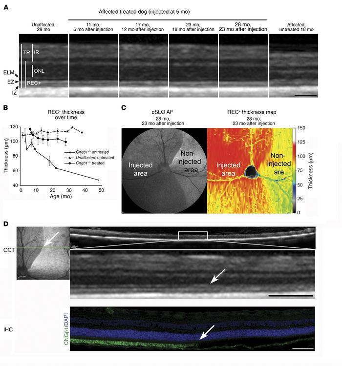 Retinal structure is preserved in gene therapy–treated retinal regions i...