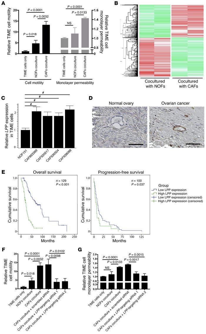 CAF-induced endothelial LPP expression in ovarian cancer. (A) TIME MECs ...