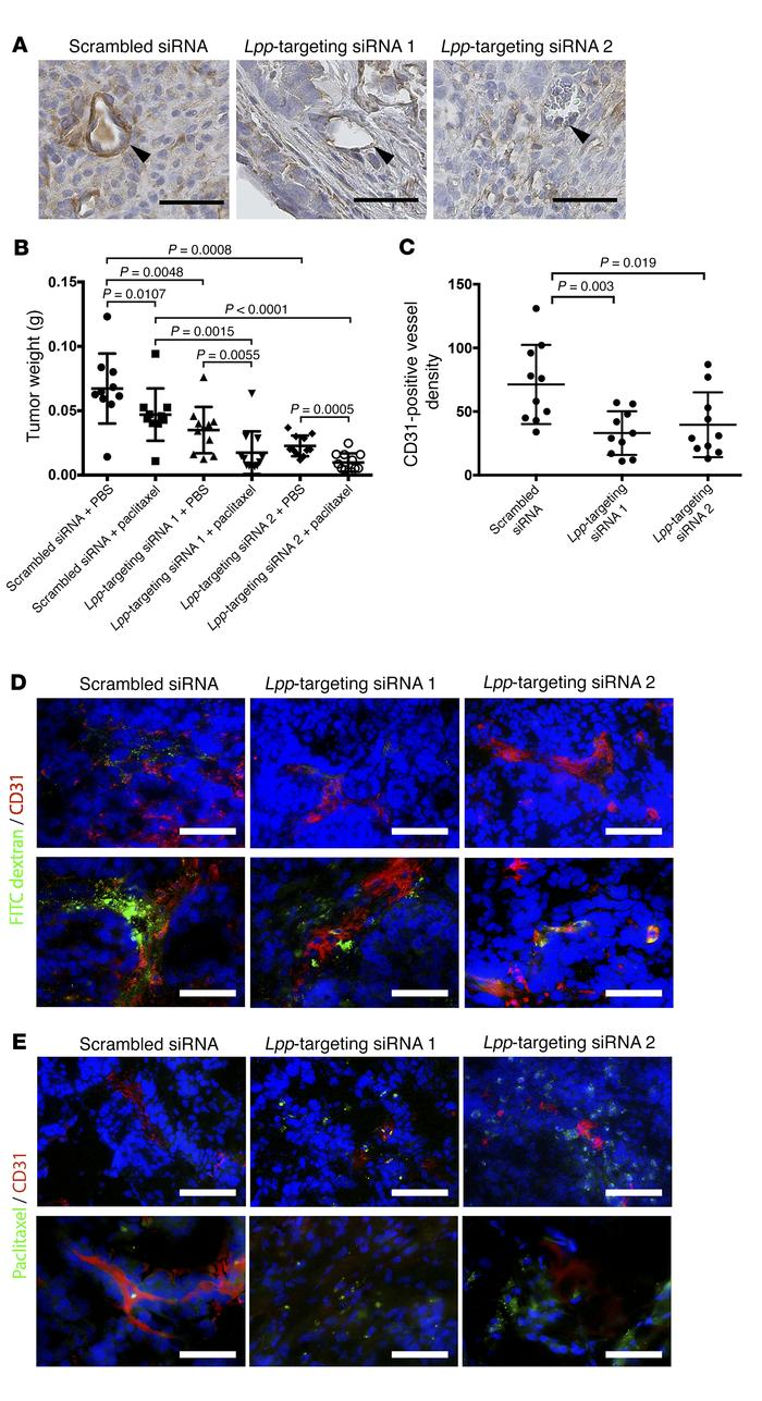 LPP silencing increases paclitaxel uptake and suppresses tumor growth in...