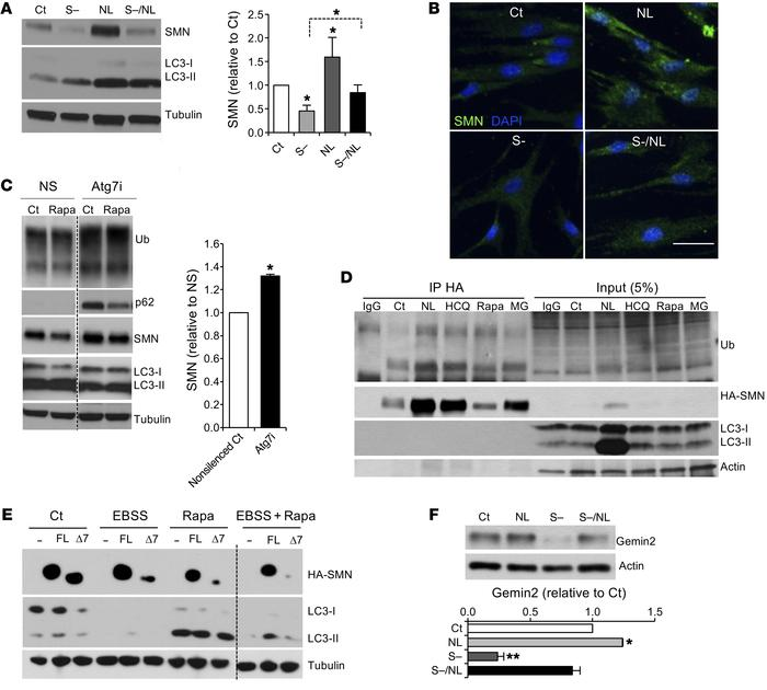Autophagy regulates SMN protein levels. (A) Representative immunoblot an...