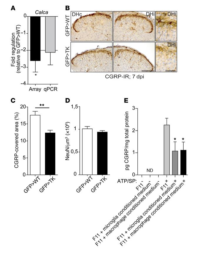 Reduced CGRP expression in the dorsal spinal cord of GFP>TK animals. ...