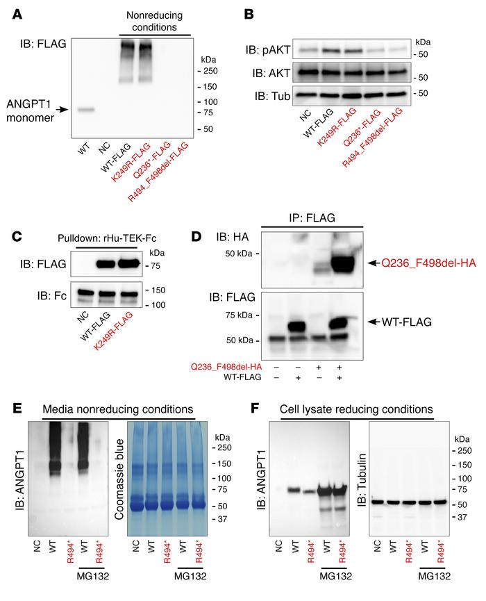 Expression and multimerization pattern of ANGPT1 variants. (A) Western b...