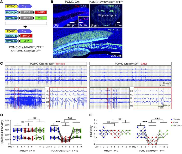 Inhibition of hippocampal DGCs suppresses SRS. (A) hM4Di and YFP are exp...