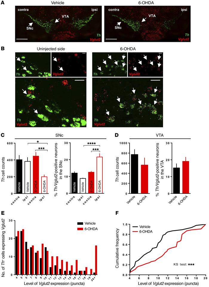 Endogenous VGLUT2 expression emerges in SNc of surviving DA neurons afte...