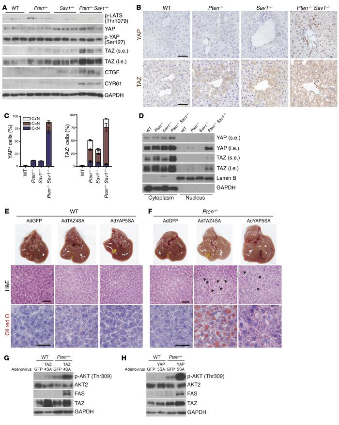 Increased TAZ or YAP activity promotes NAFLD via AKT activation. (A) Imm...