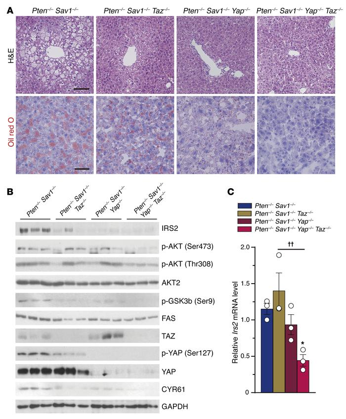 Deletion of Yap/Taz rescues the NAFLD phenotype via downregulation of IR...