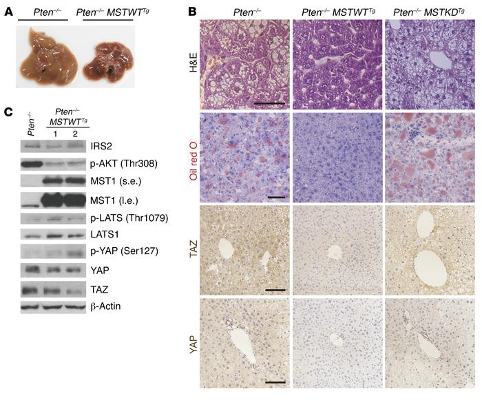 Activation of the Hippo pathway rescues the NAFLD phenotype through supp...