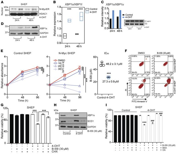 N-Myc activates the IRE1α/XBP1 pathway, rendering cells vulnerable to XB...
