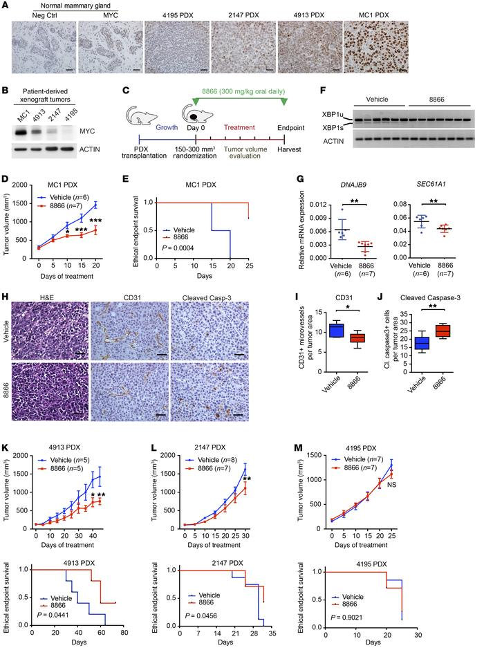 IRE1 RNase inhibitor 8866 suppresses growth of patient-derived tumors wi...