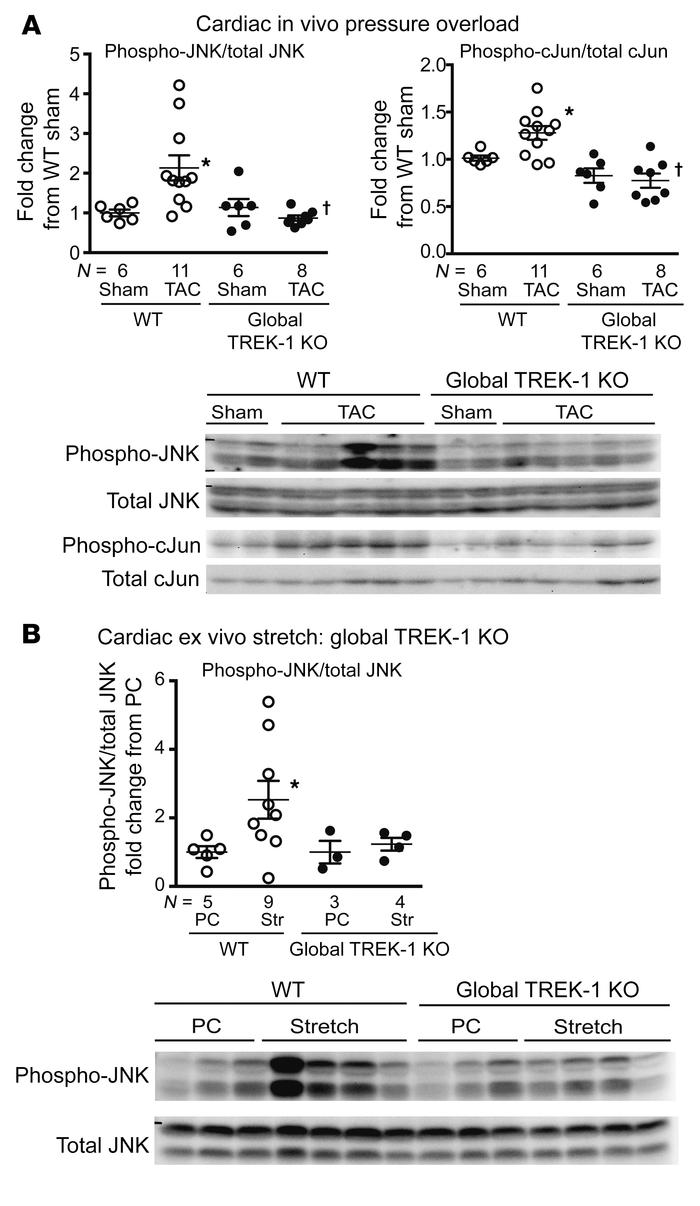 Global TREK-1 KO alters JNK phosphorylation. (A) Immunoblotting results ...