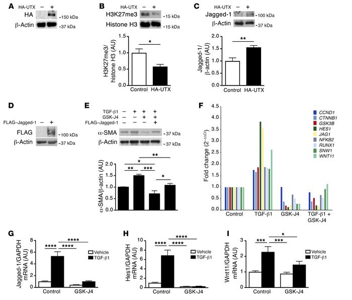 Shifts in H3K27me3 regulate Notch pathway activity in human podocytes. (...