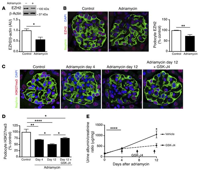 In mice with established glomerular disease, inhibition of Jmjd3 and UTX...