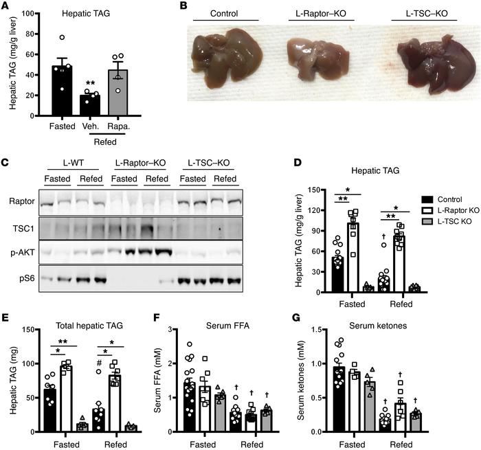 mTORC1 activity is both required and sufficient to induce hepatic steato...