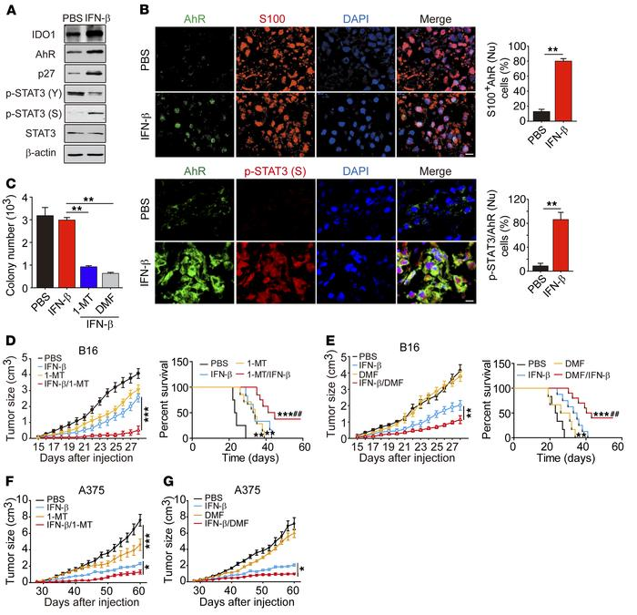 IFN-β/AhR blockade improves survival in vivo. (A) Mice with 5 × 5 mm B16...
