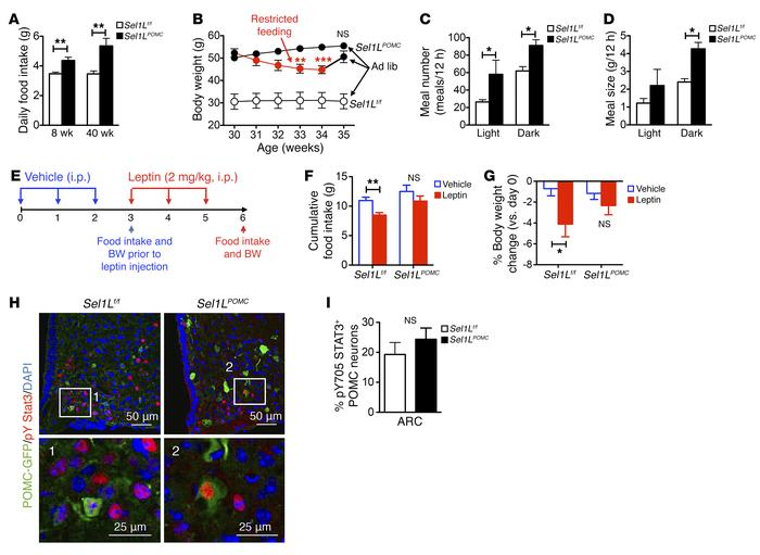 Sel1LPOMC mice exhibit hyperphagia with impaired leptin sensitivity. (A...