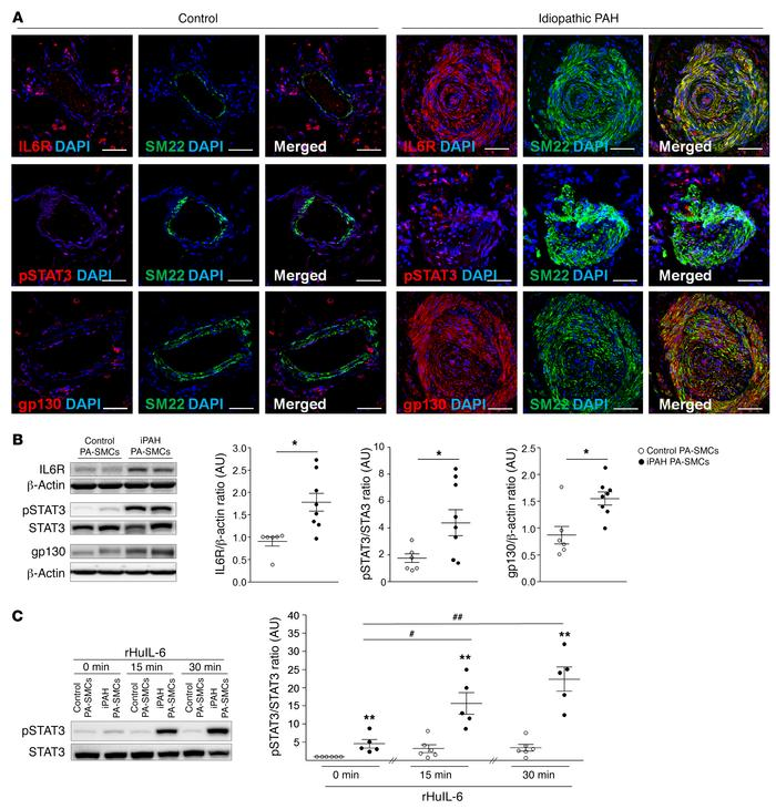 Upregulation of IL-6 cis- and trans-signaling pathways in PA-SMCs and lu...