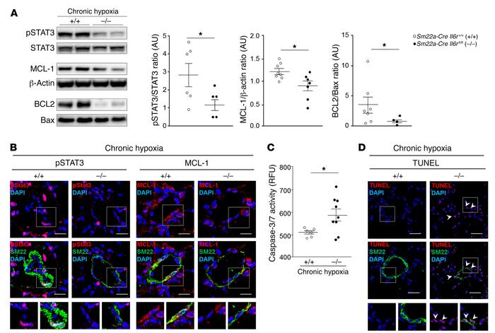 Reduced susceptibility of Sm22a-Cre Il6rfl/fl mice to the development of...