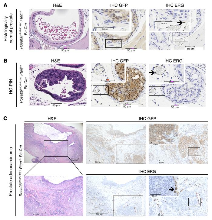 SPOP mutation does not result in ERG protein expression by immunohistoch...