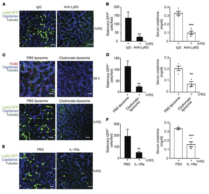 Role of resident phagocytes and leukocyte recruitment in CI-AKI. (A) Mul...