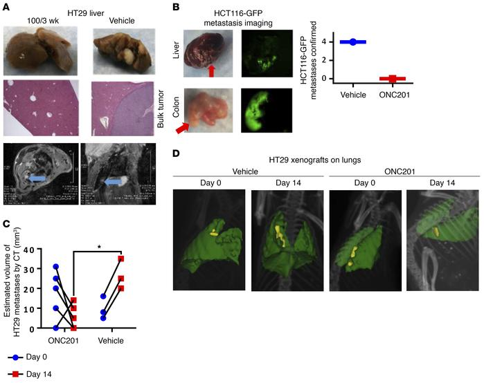 ONC201 inhibits metastasis in vivo. (A) Metastasis imaging by gross anal...
