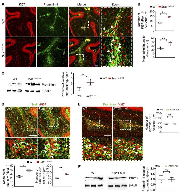 Mutant ATXN1 increases proliferation and enlarges the population of cere...