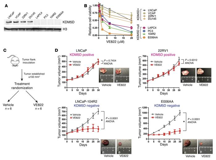 Higher sensitivity of ATR inhibitor to PC cells deficient in KDM5D in an...