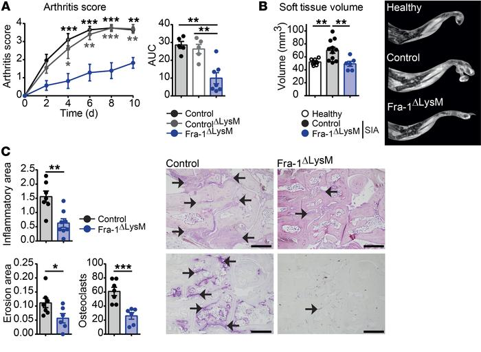 Ameliorated joint inflammation in Fra-1ΔLysM arthritic mice. K/BxN arthr...