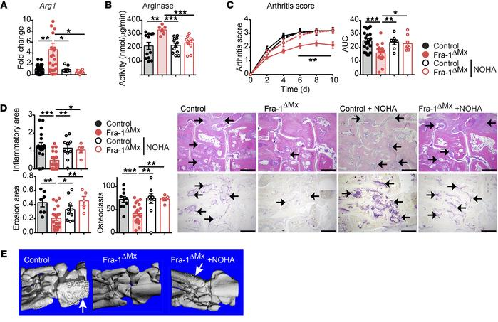Arginase inhibition by NOHA restores arthritis in Fra-1ΔMx mice. Arthrit...