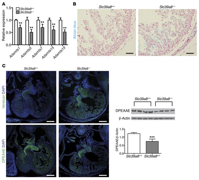 Slc39a8 deletion leads to decreased expression of Adamts metalloprotein...