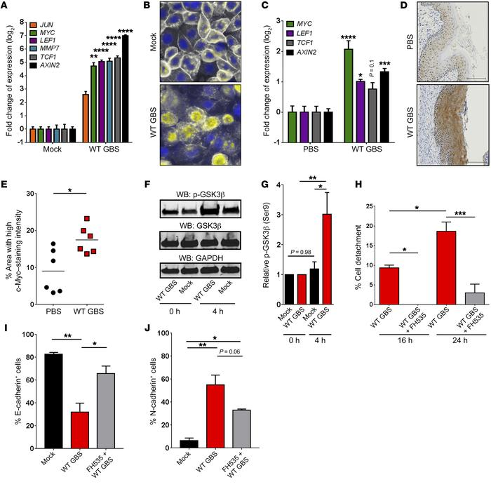 GBS induces β-catenin signaling. (A) Expression of β-catenin target gene...