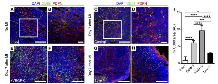 VEGF-C–driven cardiac lymphangiogenesis promotes clearance of immune cel...
