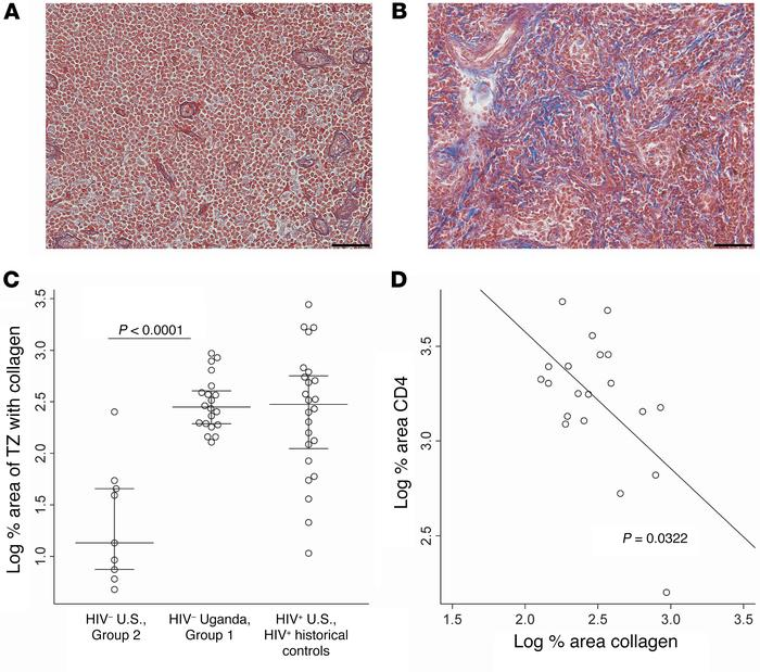 Increased T cell zone fibrosis in people from Uganda. A representative s...