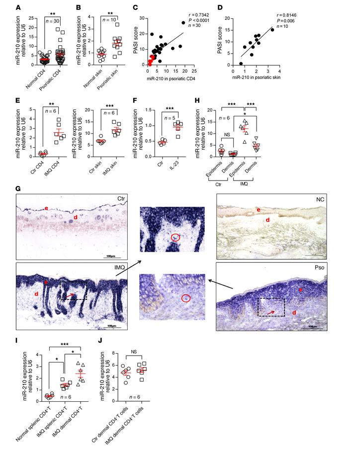 miR-210 expression is elevated in psoriatic CD4+ T cells and skin lesion...