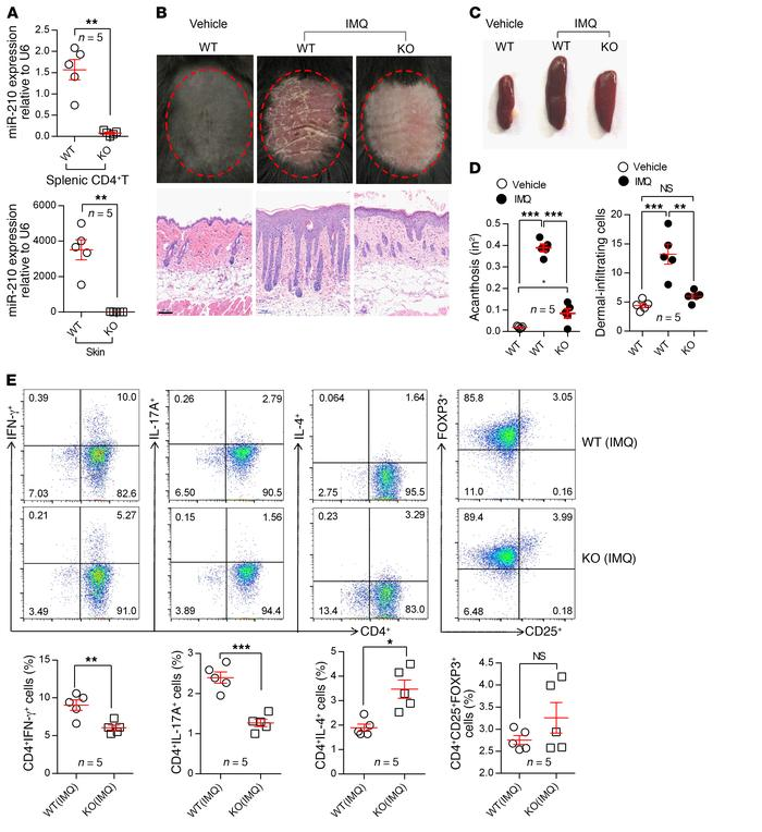 miR-210 deletion blocks psoriasis development. (A) miR-210 expression in...