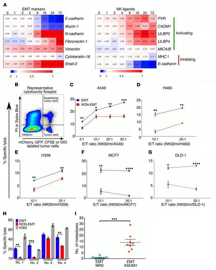 EMT differentially regulates NK ligands and promotes susceptibility to N...