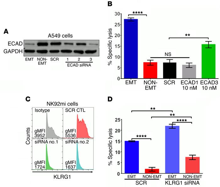 Loss of E-cad expression sensitizes tumor cells to NK-mediated cytotoxic...