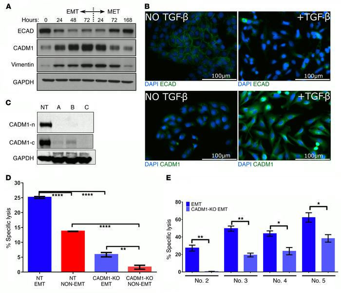 CADM1 expression is modulated by EMT-MET cycling and mediates tumor cell...