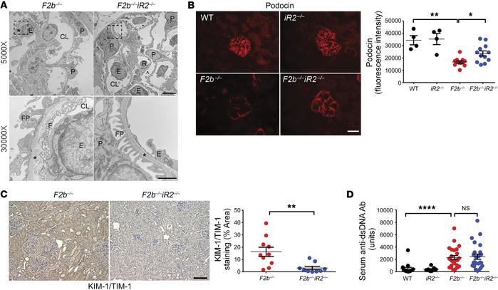 iRhom2 deficiency rescued renal damage in Fcgr2b–/– mice without alteri...
