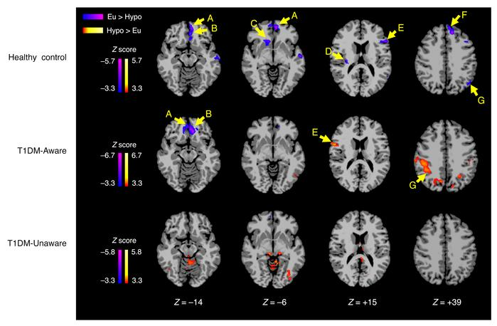 Differences in regional brain responses between mild hypoglycemia and eu...